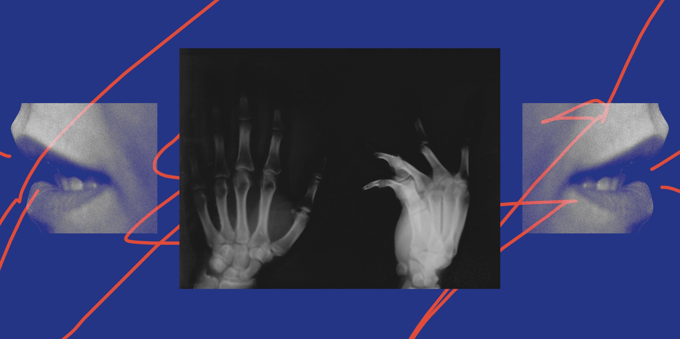 conversa IV – Males do corpo e da alma/ rotinas